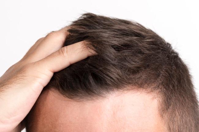 μεταμοσχευση μαλλιων θεσσαλονικη
