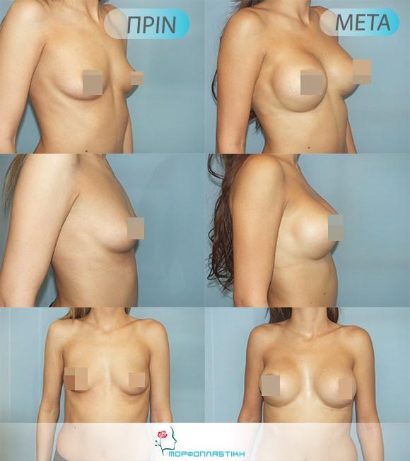 πλαστική στήθους θεσσαλονικη