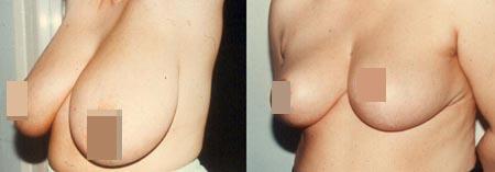 Σμίκρυνση Στήθους στην θεσσαλονικη ΔΡ Σταμπος