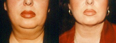 Λιποαναρρόφηση θεσσαλονικη1