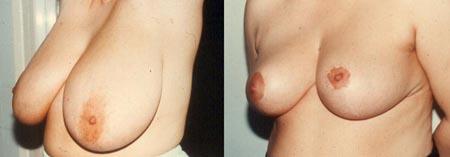Σμίκρυνση Στήθους